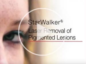 Laser pigmentation removal