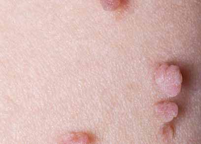 Skin Tags Skin Lesions