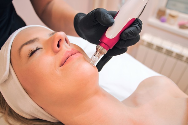 Micro Needling For Great Skin